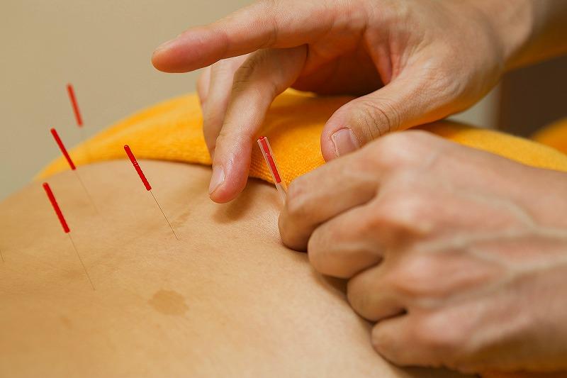 背中に鍼治療